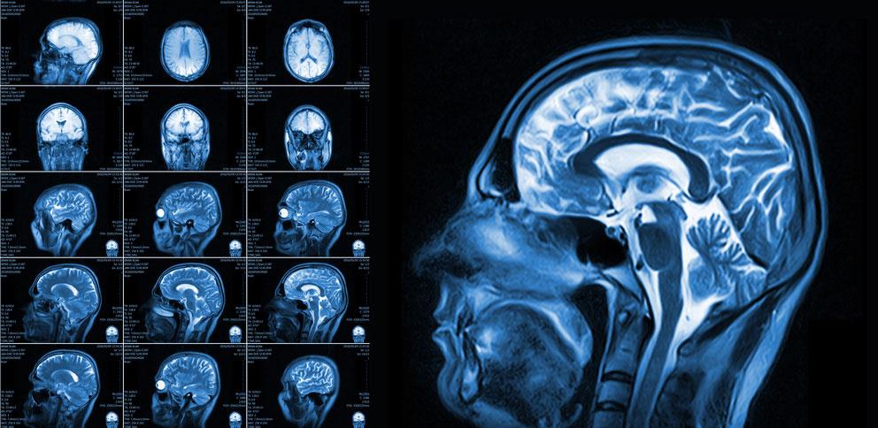 Roentgenbild eines Hirns für Hypnosetherapie